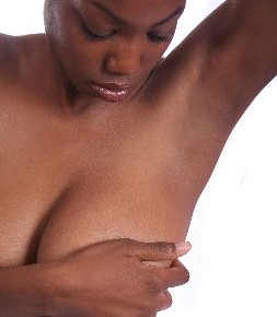stretch marks on breasts and how to get rid of them 21666423 253x290 Убираем растяжки на груди